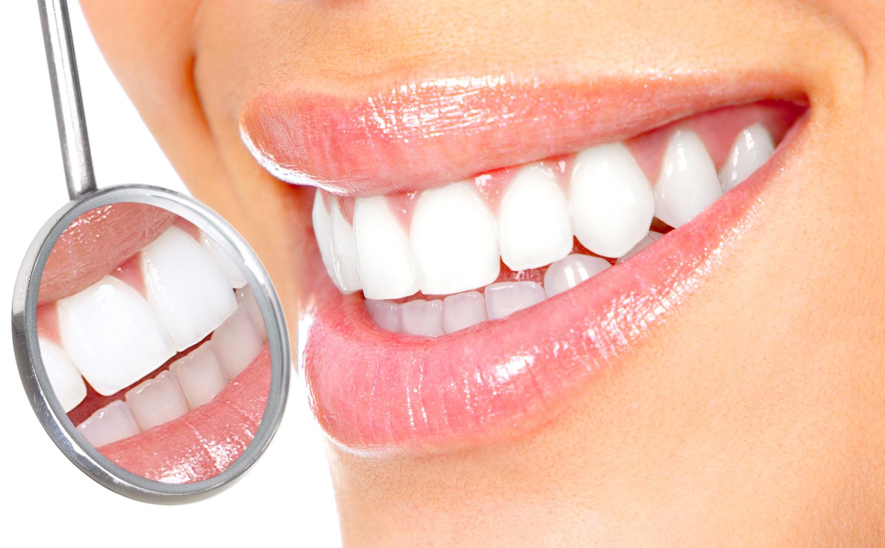 pulizia dentale torino